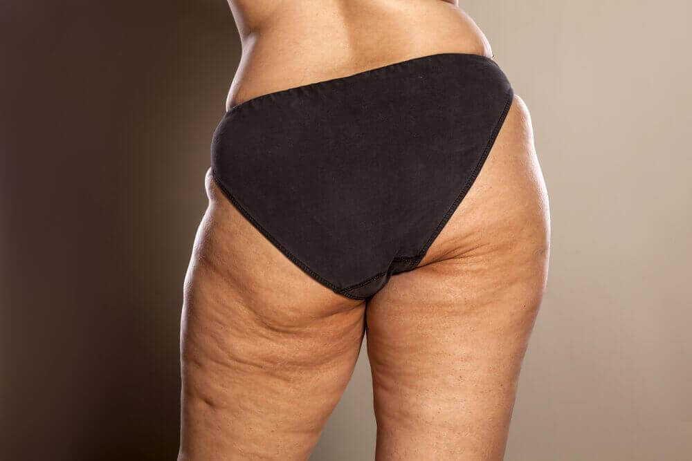 a woman with a lot of cellulite on her butt and thighs