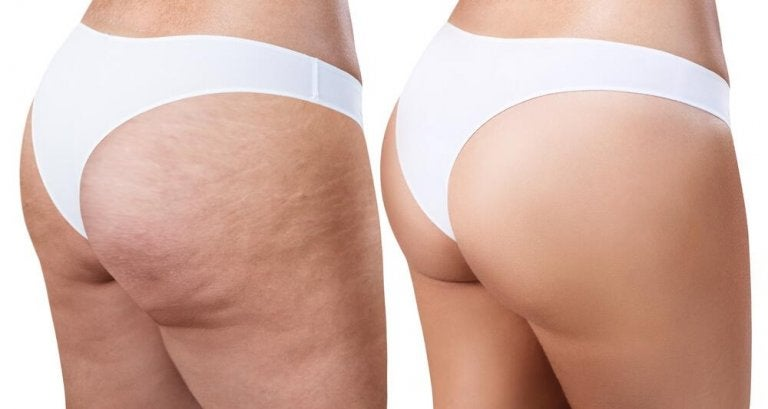 Get Rid of Cellulite With These Easy and Effective Home Remedies