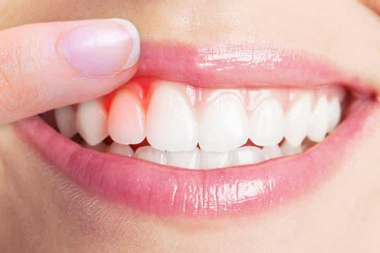 The Top 5 Remedies for Treating Gum Infections