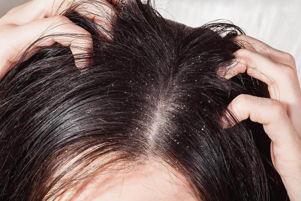 Scalp infections