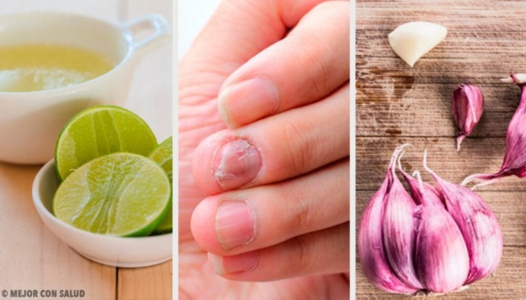 Home Remedies for Fungal Nail Infection