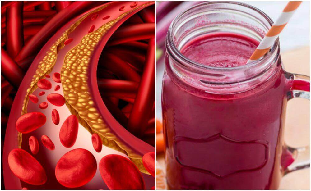 How to Make a Special Beet Smoothie to Control Cholesterol