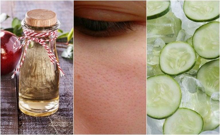6 Natural Ways to Close Your Pores