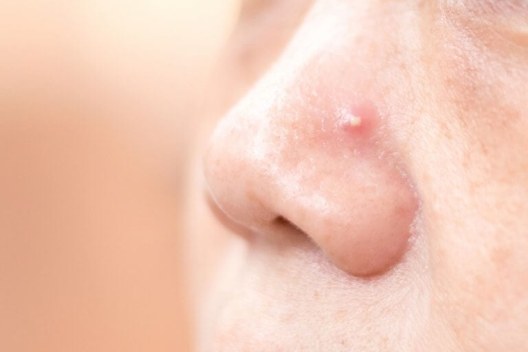 Get Rid of Pimples on Your Nose with these 4 Homemade Remedies