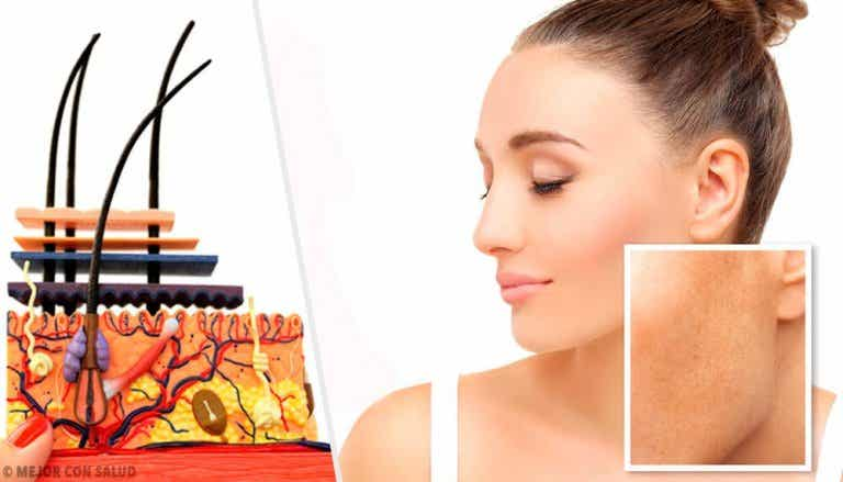 Skin Spots and What Causes Them