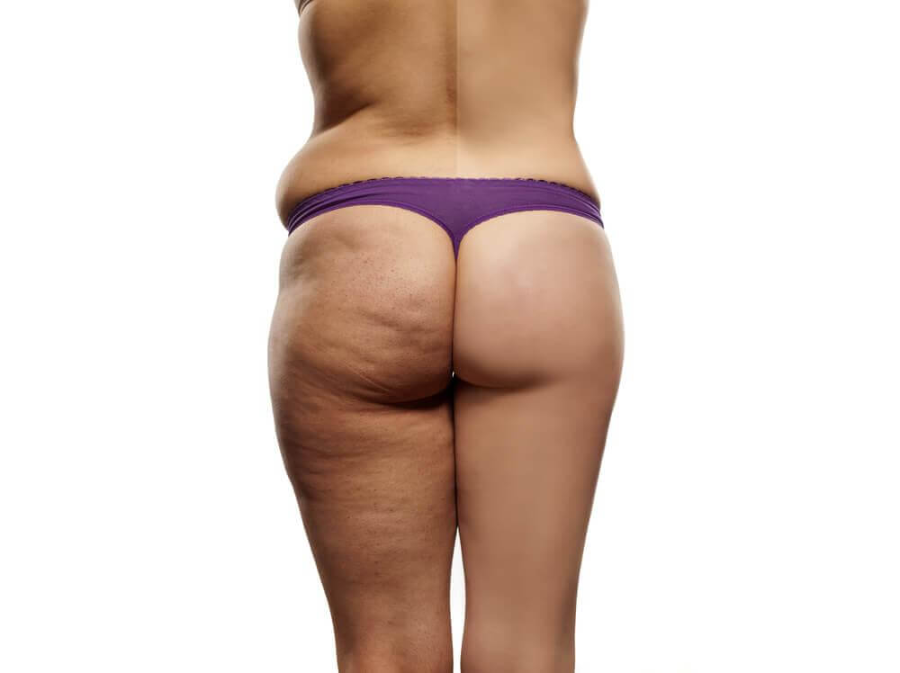 The Perfect Anti-Cellulite Diet Plan