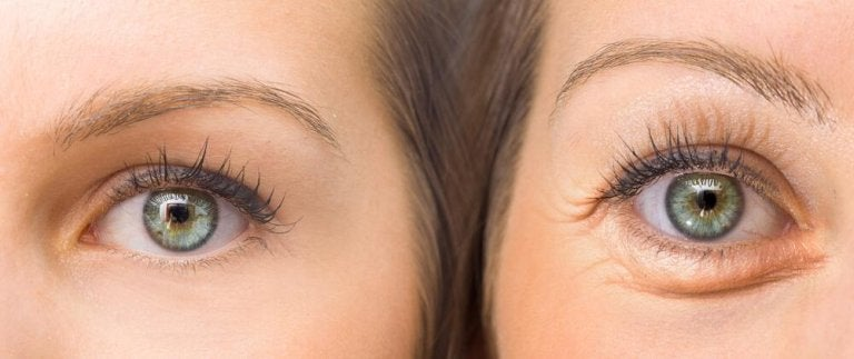 Tighten Your Droopy Eyelids With These 5 Natural Ingredients