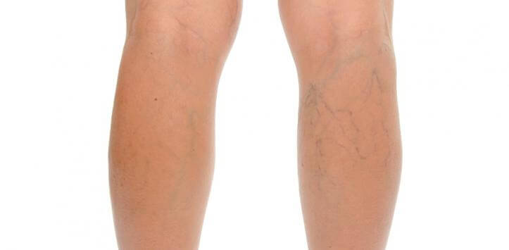 legs with varicose veins