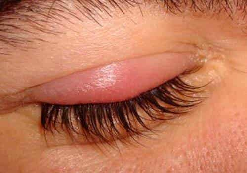 Natural Treatments for Styes