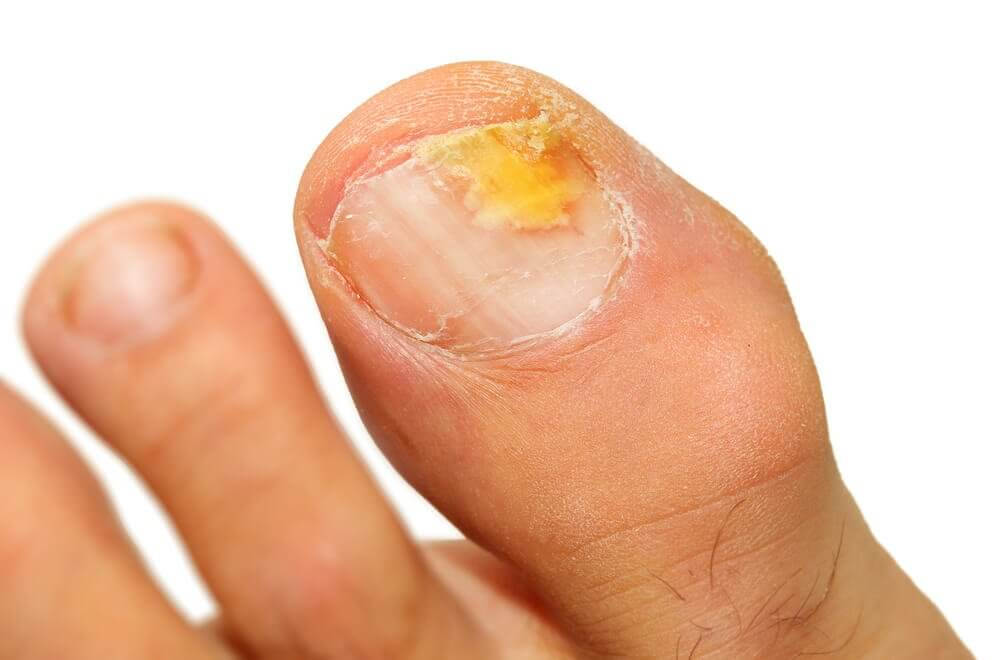 5 Essential Oils to Eliminate Onychomycosis