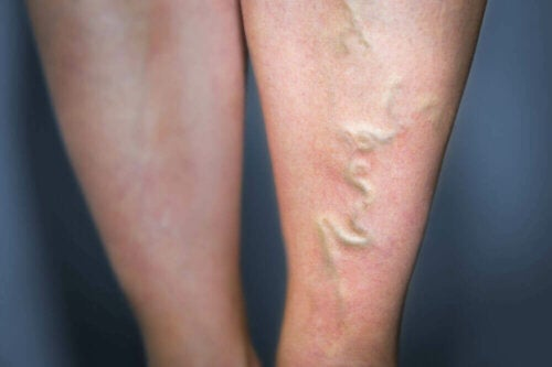 A person that needs to treat phlebitis.