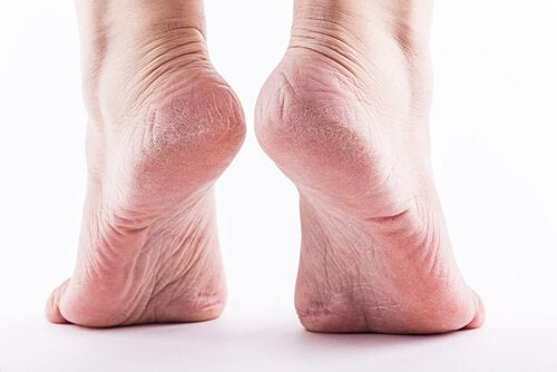 Calluses on the Feet