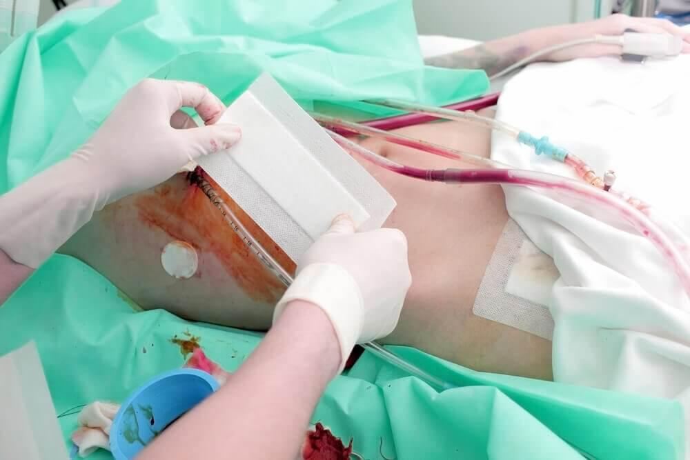 Photo of real-life kidney transplants