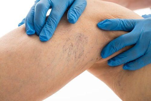 8 Rules to Follow If You Want to Cure Varicose Veins