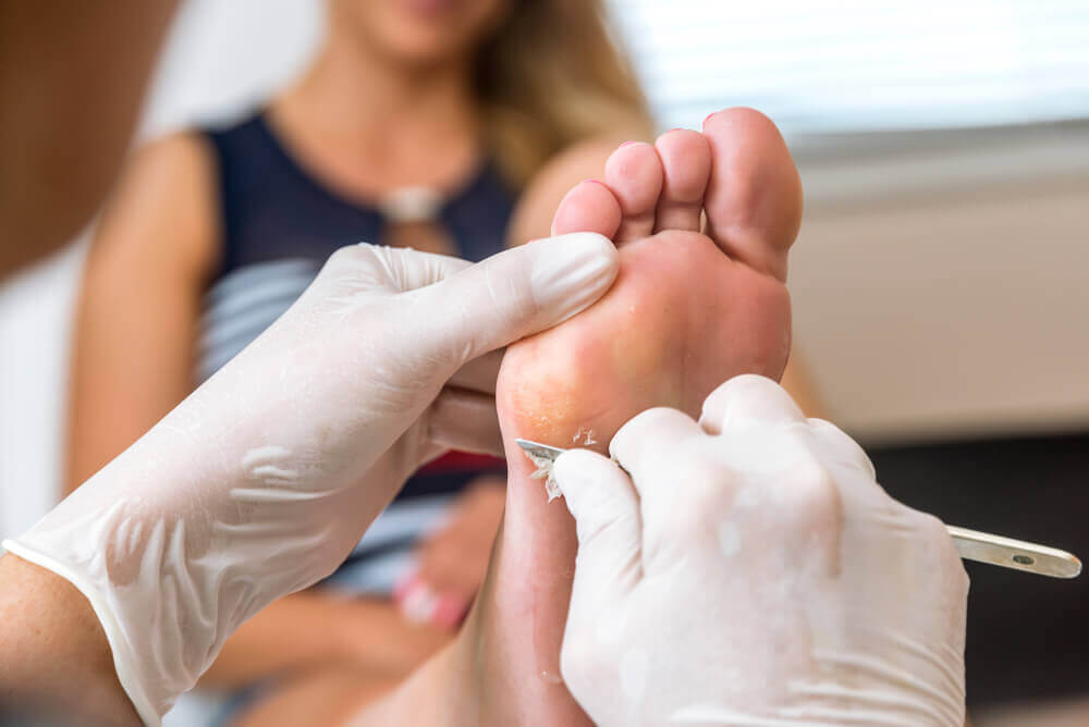 The Best Alternatives to Get Rid of Annoying Foot Calluses