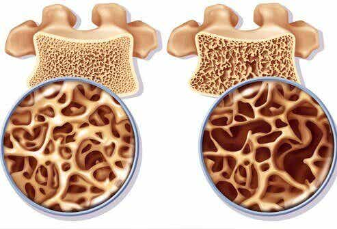 How to Prepare a Calcium-Rich Remedy to Prevent Osteoporosis