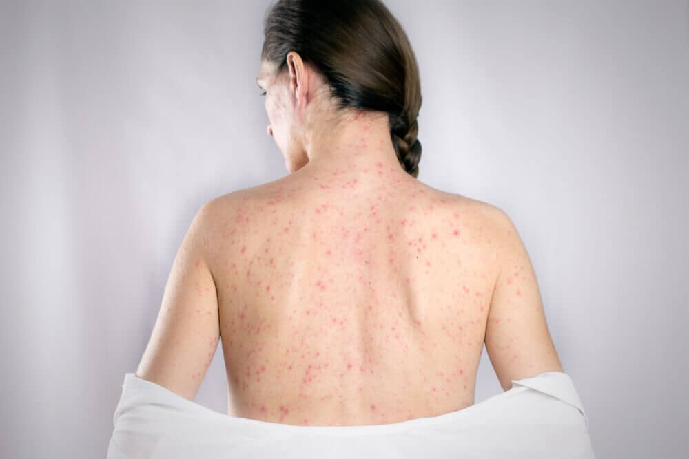 The 5 Best Remedies to Cure Back Herpes
