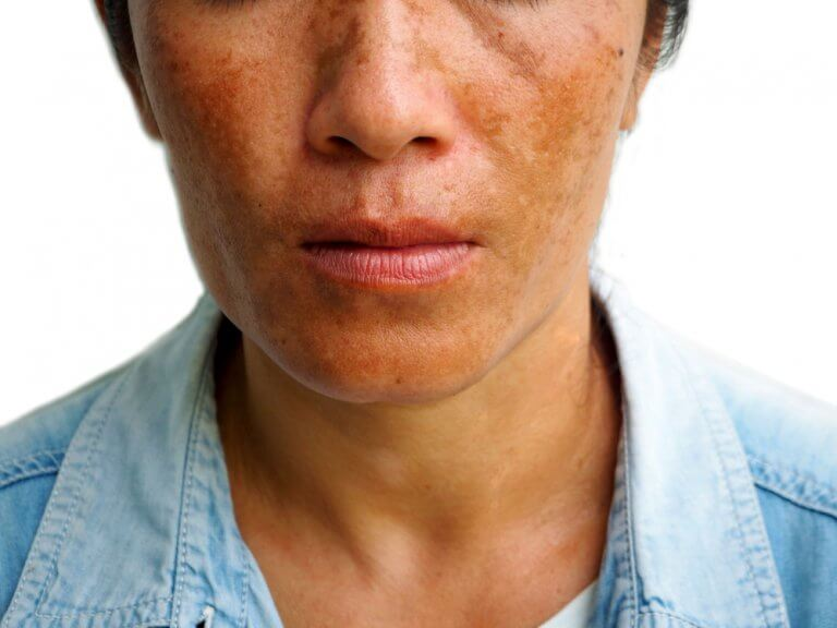 3 Treatments for Reducing Melasma Spots