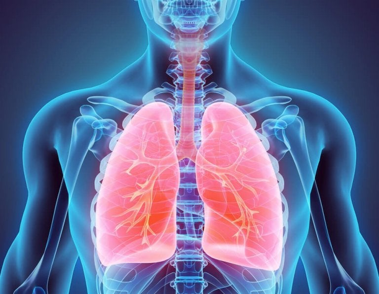Everything You Need to Know about Bronchiectasis