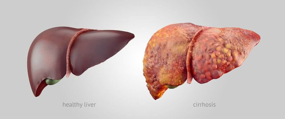 3 Tips Every Person with Cirrhosis Must Follow