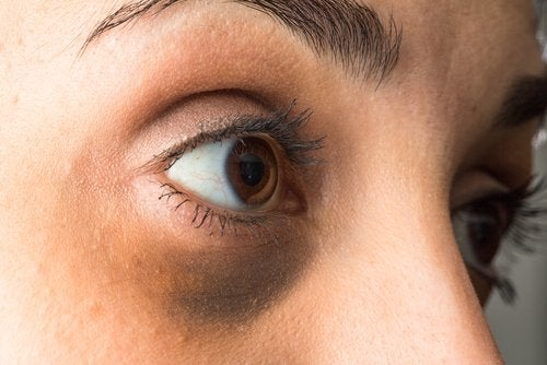 How to Lighten Dark Circles Under Your Eyes with Essential Oils