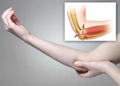 Relieve Your Tennis Elbow With These 5 Natural Remedies