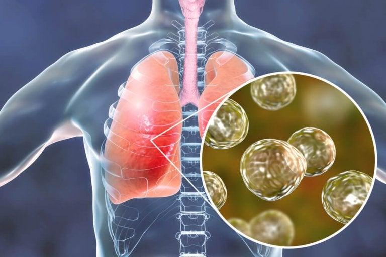 5 Natural Remedies for Blastomycosis Symptoms