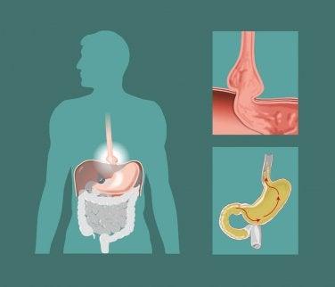 A diagram of a hiatal hernia