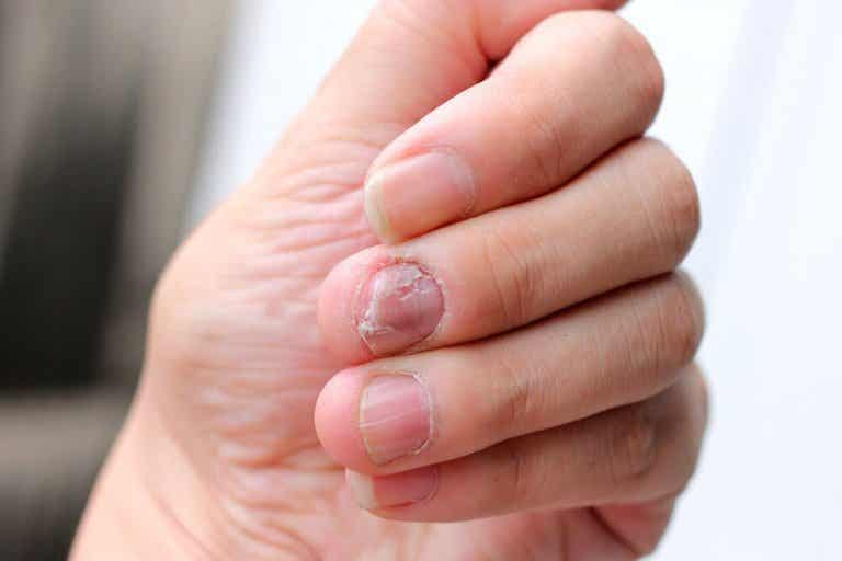 5 Natural Remedies for Psoriatic Nails