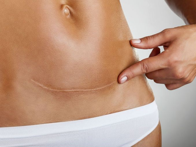 A C-section scar.