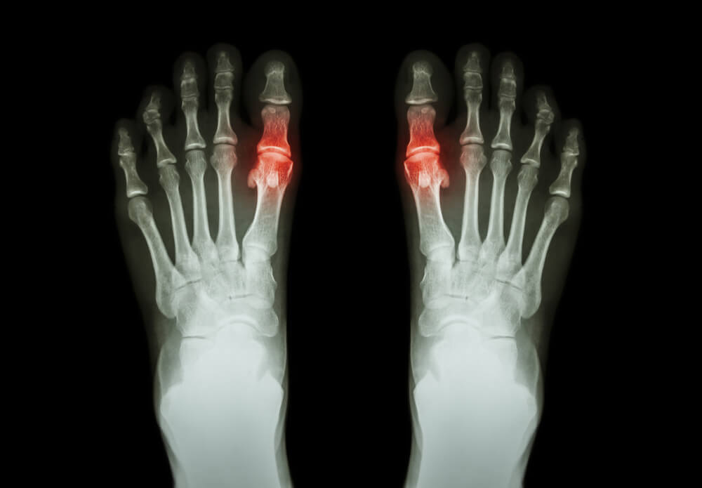 Effective Natural Remedies to Treat Gout