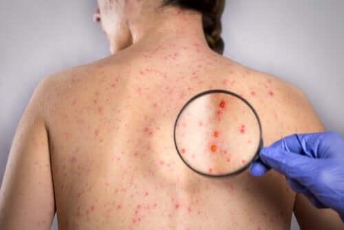 back herpes
