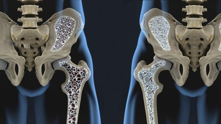 Six Diet Tips to Prevent Osteoporosis