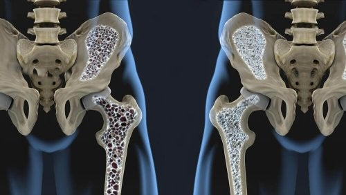 6 Diet Tips to Help You Prevent Osteoporosis