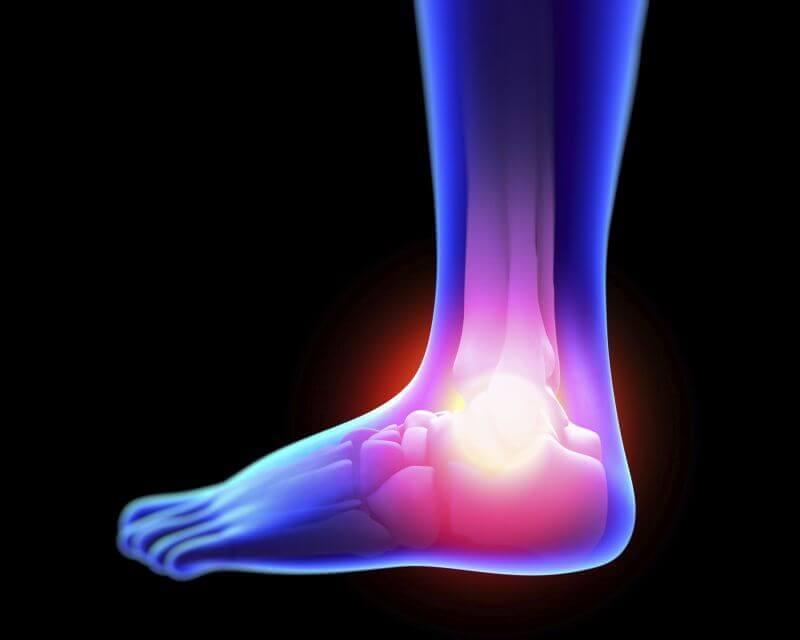How to Treat Sprain Symptoms Naturally