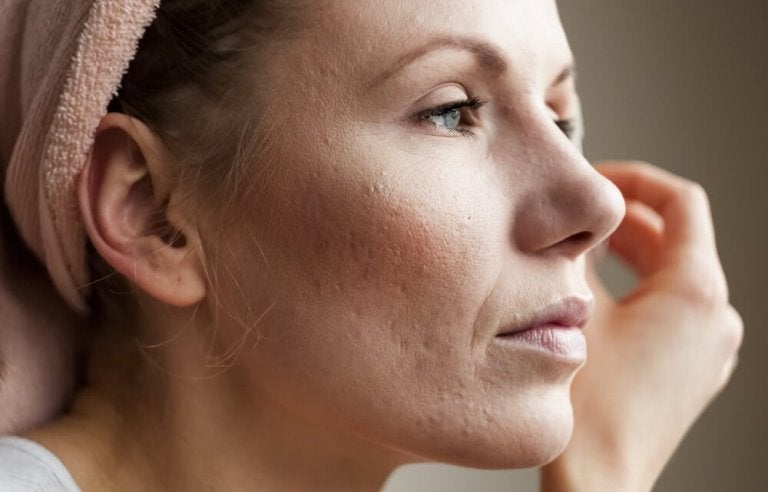 8 Tips to Reduce Your Pore Size