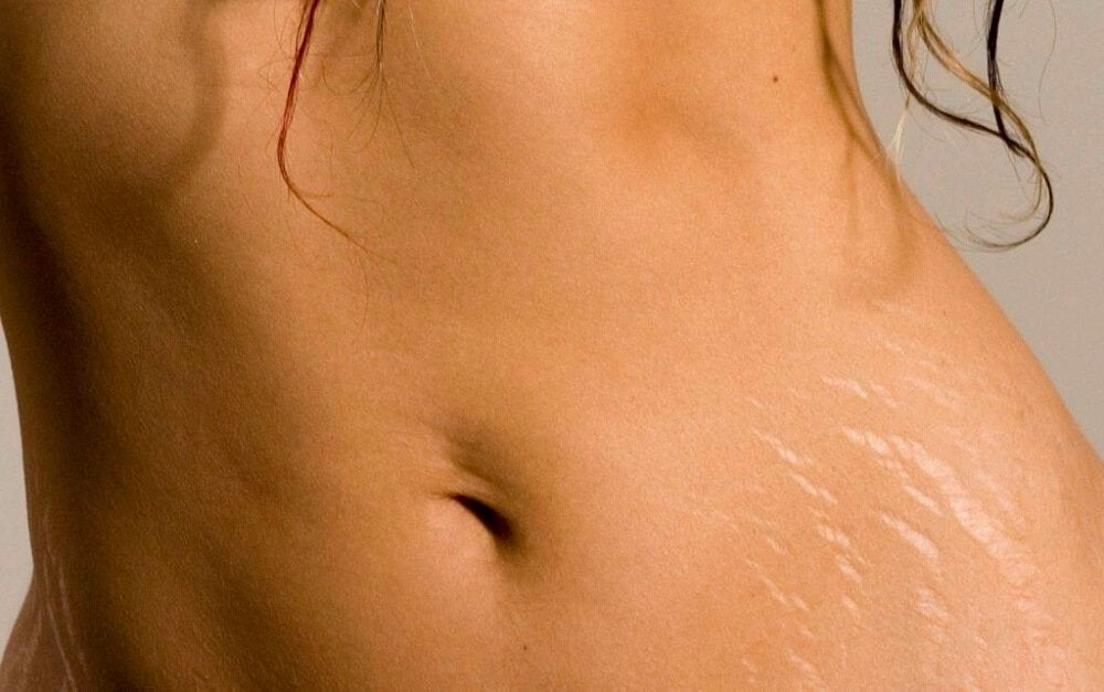 Use alum stone to combat stretch marks.