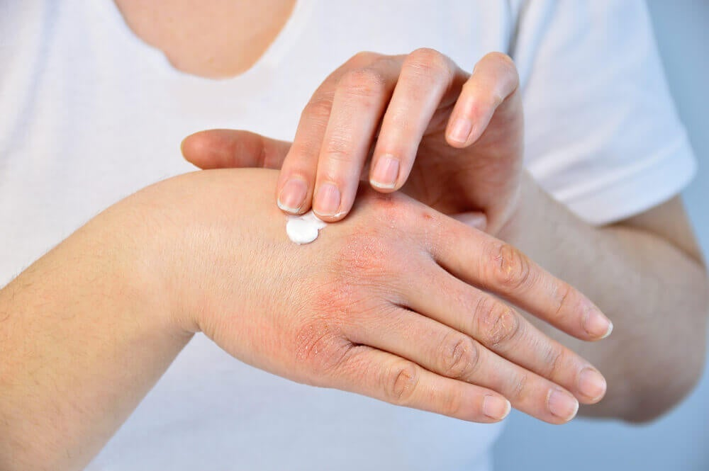 A woman applying vitamin D cream to her hands.