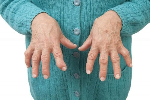 Relieve Rheumatoid Arthritis with Medicinal Remedies