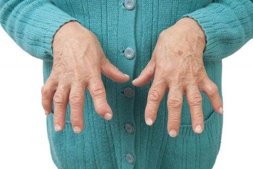Relieve Rheumatoid Arthritis with Medicinal Remedies