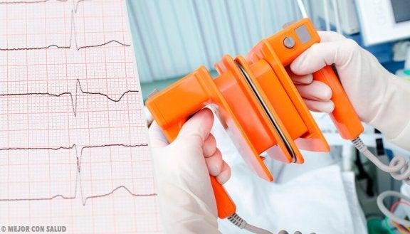 arterieflimren og hjertestarter