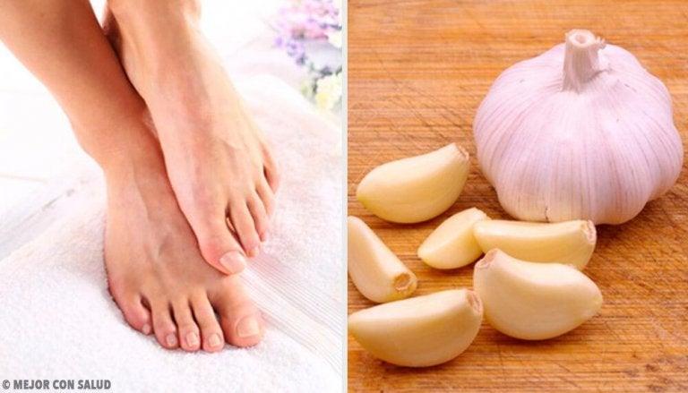 How to Use Crushed Garlic for an Ingrown Toenail