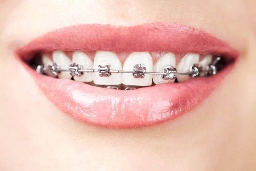 A woman with orthodontics.