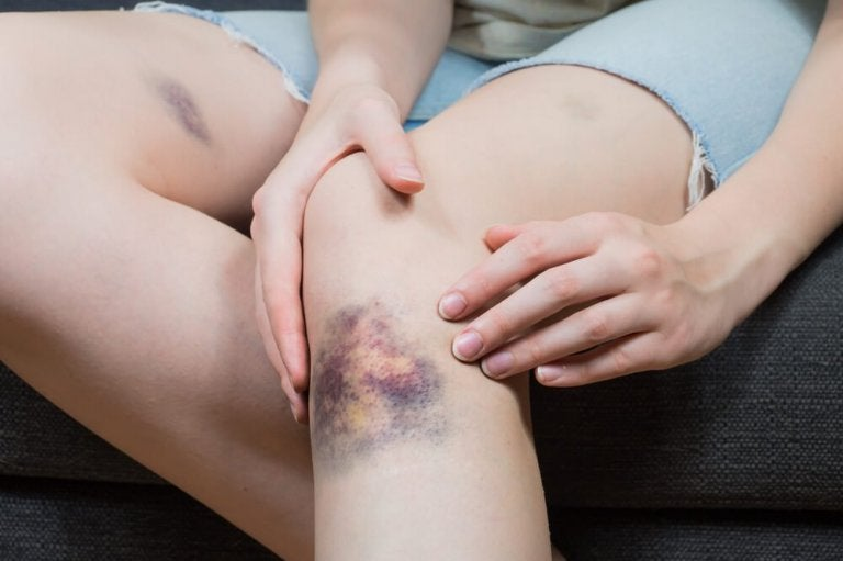 5 Natural Solutions to Treat Bruises