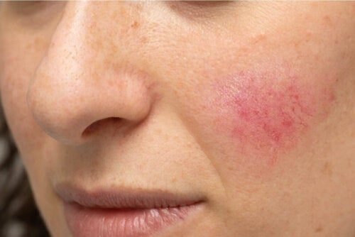 A woman who needs to reduce rosacea.