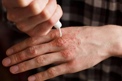 A man applying ointment on his psoriasis.