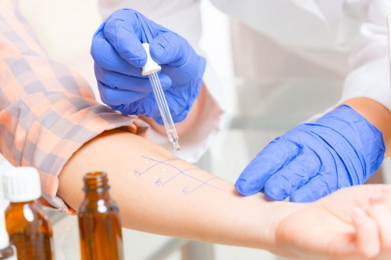 Allergy Tests: Types and Procedures