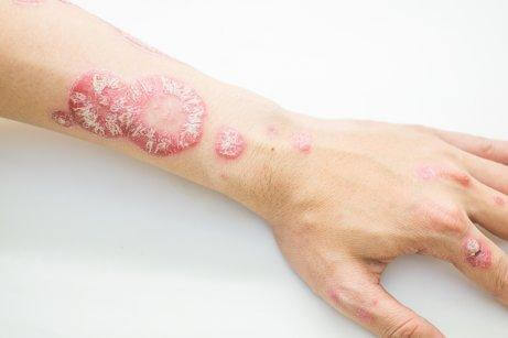 An arm with psoriasis.