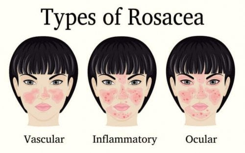 To improve rosacea you have to know what type you have.