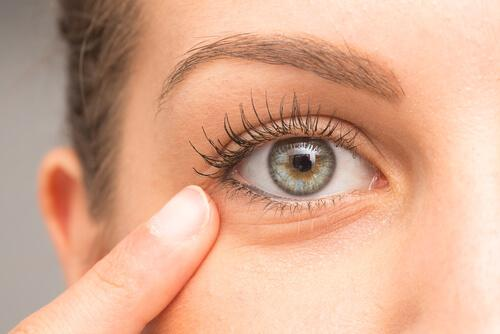 Home Treatment to Reduce the Appearance of Dark Circles